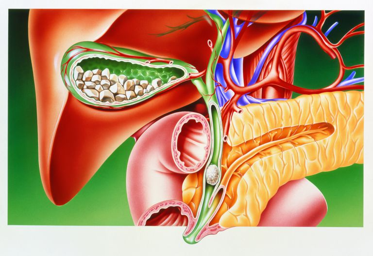Illustration of gallstones in the gallbladder (with the liver and pancreas)