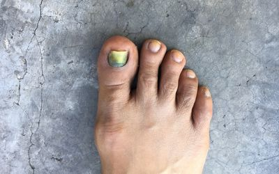 Breast Cancer, Chemotherapy, and Your Nails Melanoma Toenail