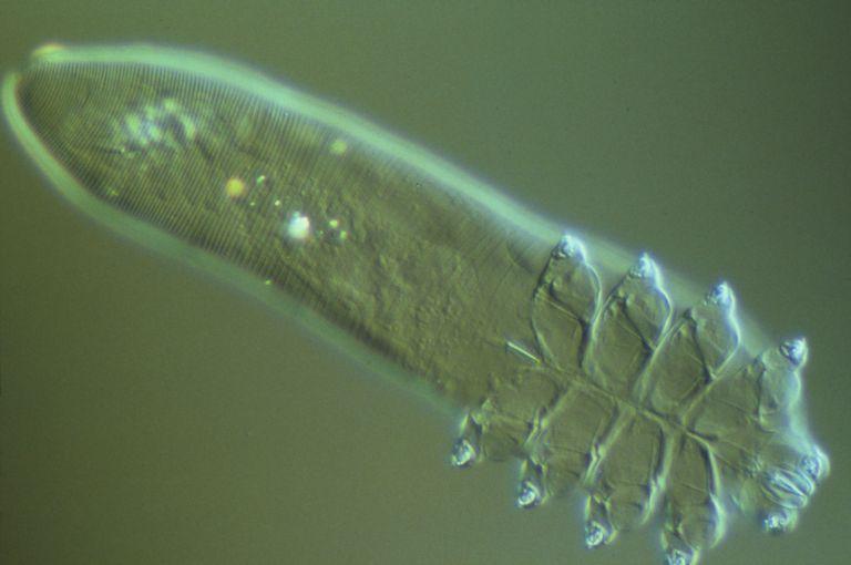 A magnified image of Demodex folliculorum, the follicle mite.
