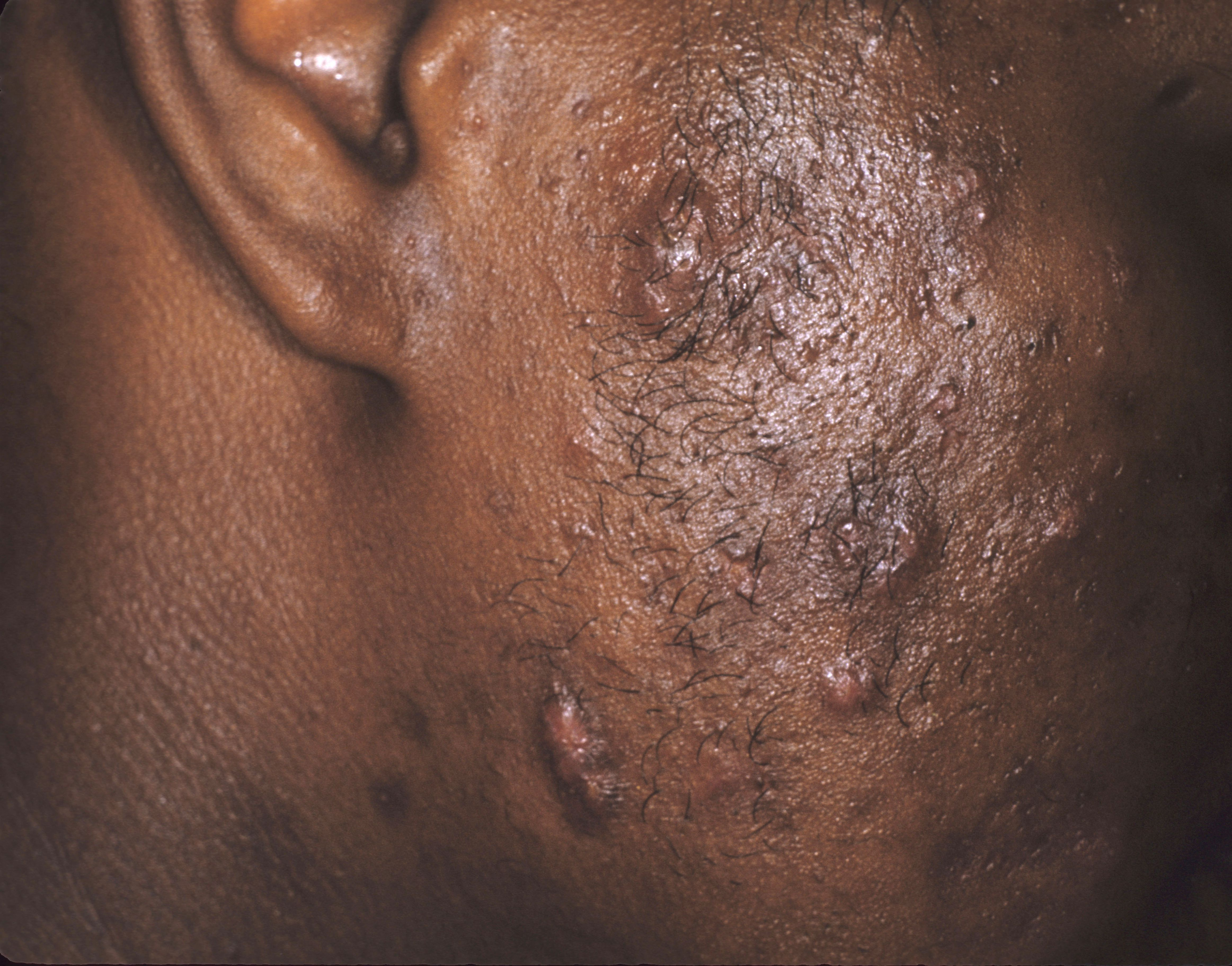 Alternatives To Accutane For Treating Acne-9705