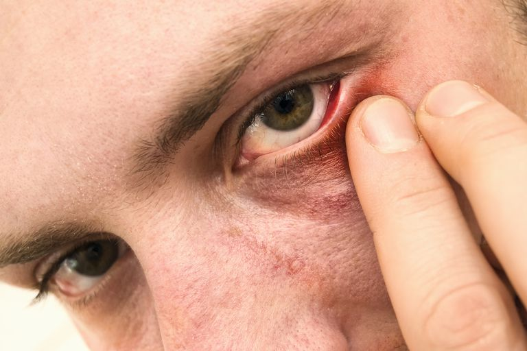 Man with eyelid irritation