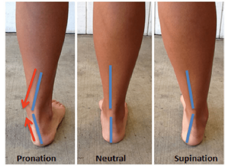 Side-by-side comparison of pronation, neutral, and supination