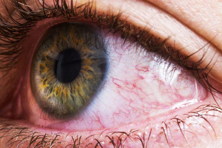 Closeup of bloodshot red eye