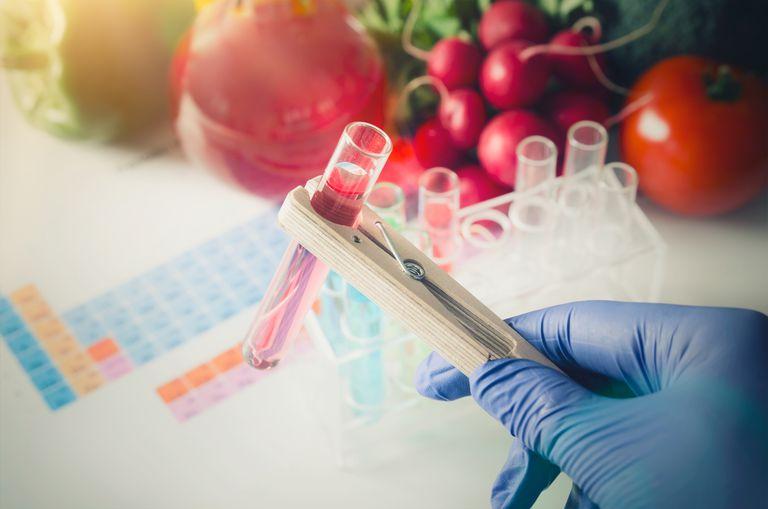 Genetics and diet