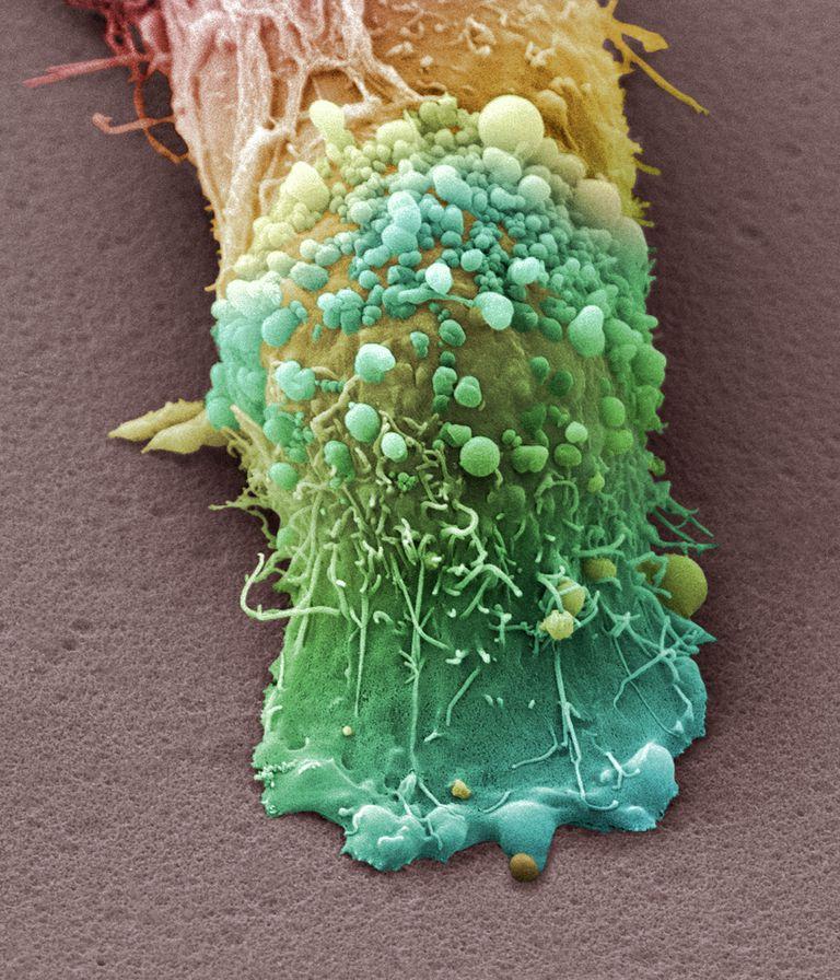 Skin cancer cell, SEM