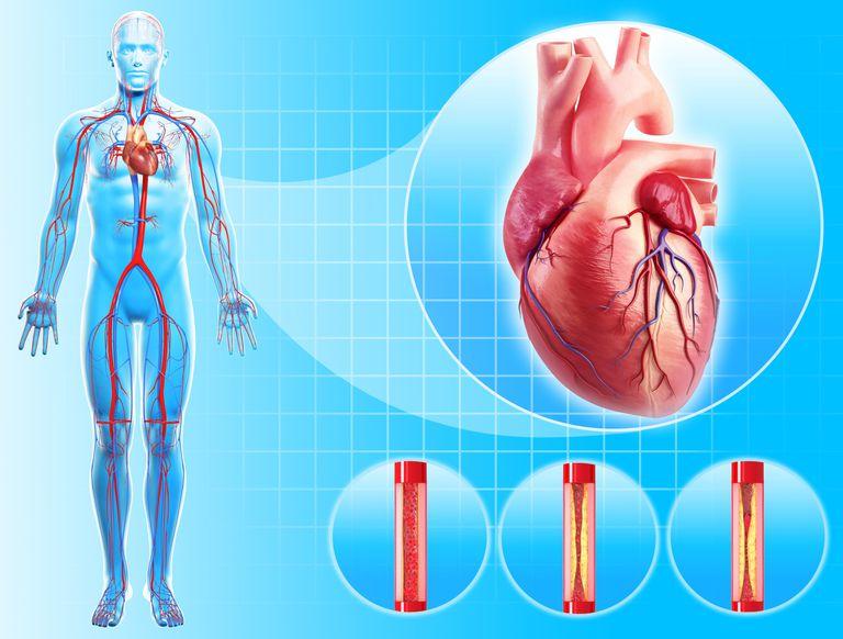 angiografía coronaria o coronariografía, angiografia carotidea,