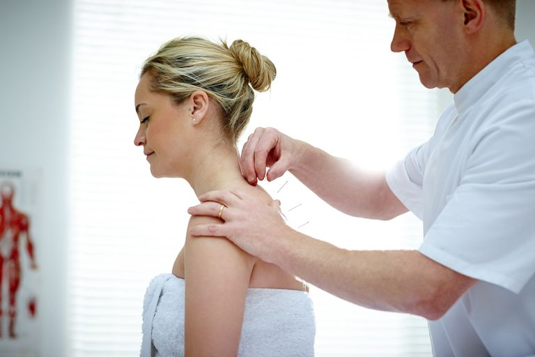 Physiotherapist doing acupuncture on the back of a female patient