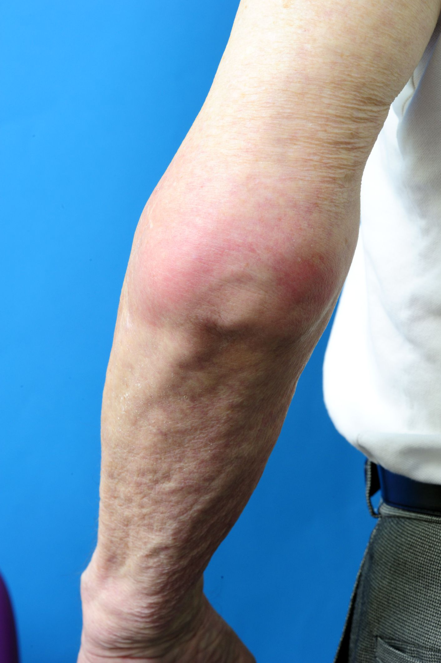 Gout Attack Explained - Causes, Symptoms, and Frequency