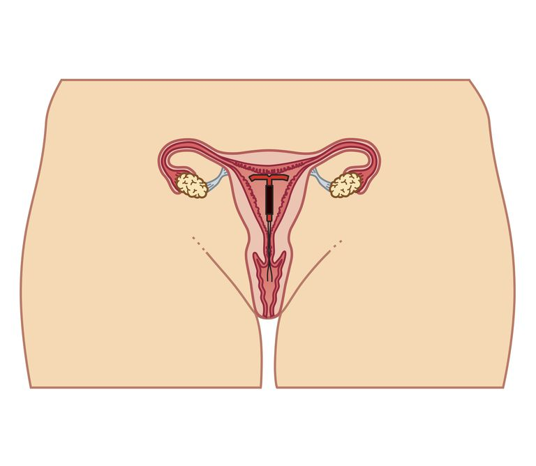 Cross section biomedical illustration of Intrauterine device (IUD) in position