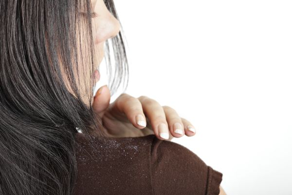 Dandruff on a woman's shoulder