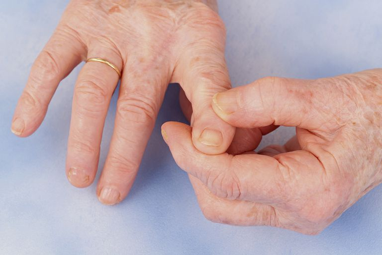I got You have several signs and symptoms associated with arthritis.. Could You Have Arthritis?