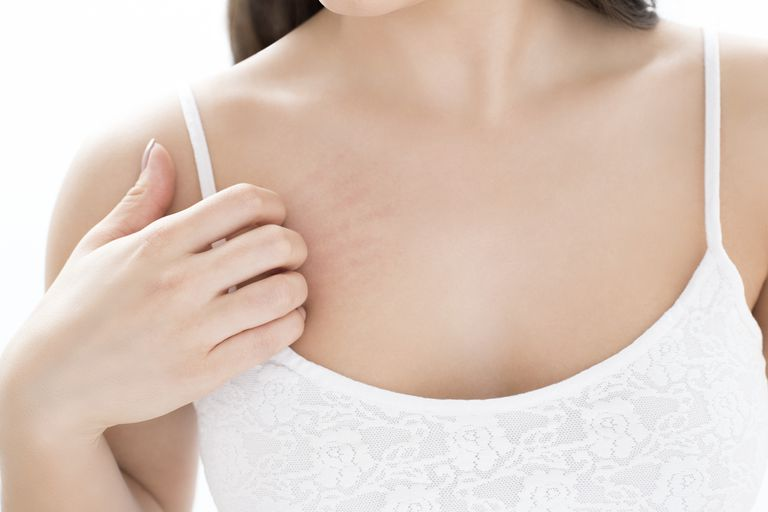 woman scratching itchy breast