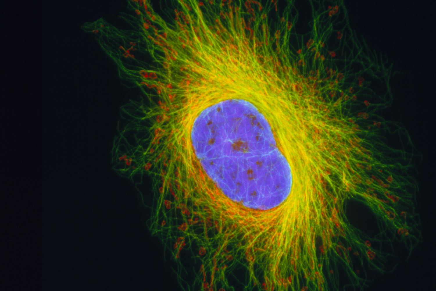 Cytoskeleton: Anatomy, Function, and Structure