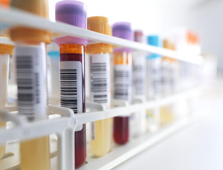 hemograma o conteo sanguineo completo