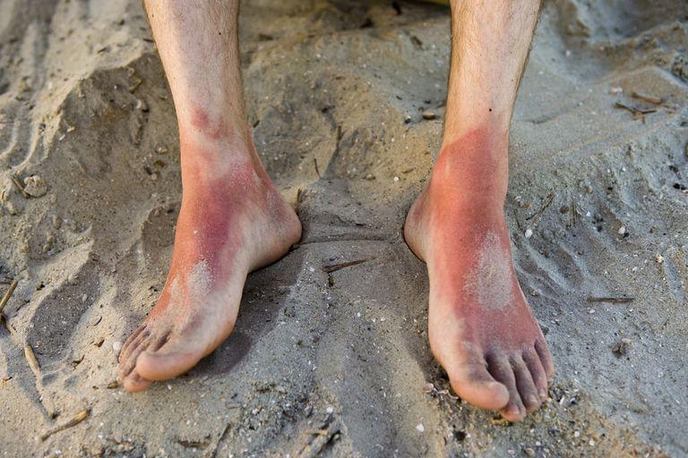 Sun exposure can cause lupus lesions.
