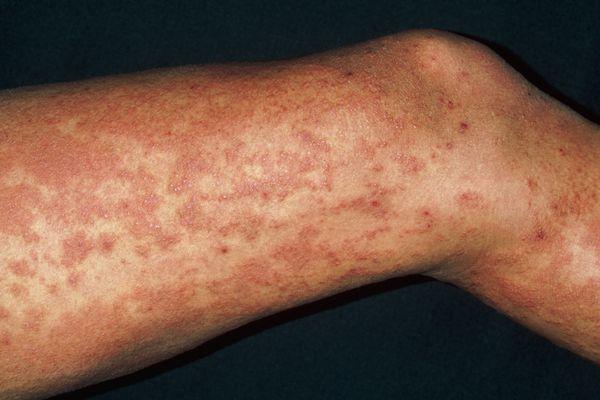 Urticaria rash (hives) on legs