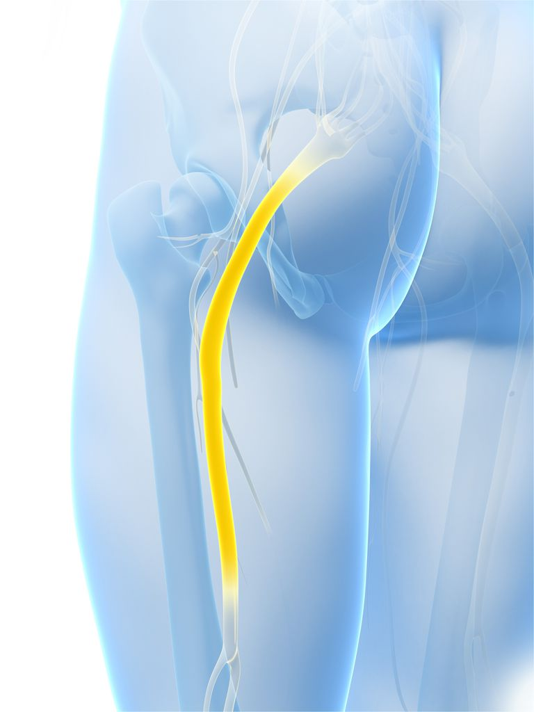 Depiction of the sciatic nerve as it runs through the pelvis and down the thigh.