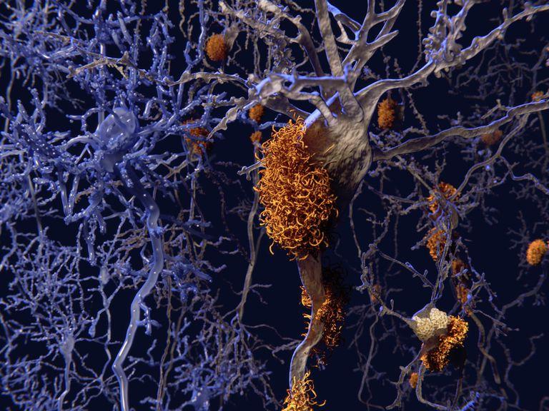Brain Cells Affected by Alzheimer's Disease