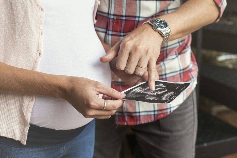 Parents looking at ultrasound photo