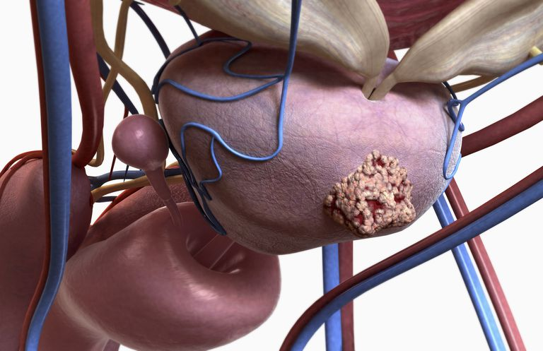 Tumor on a prostate