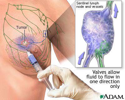 sentinel lymph node illustration