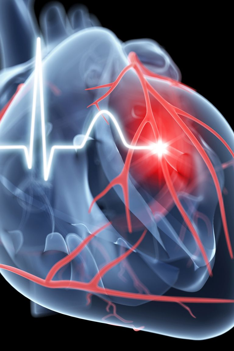 An illustration depicting heart failure.