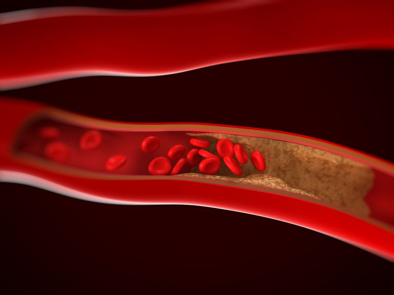 Que es la arteriosclerosis, causas arteriosclerosis, infarto