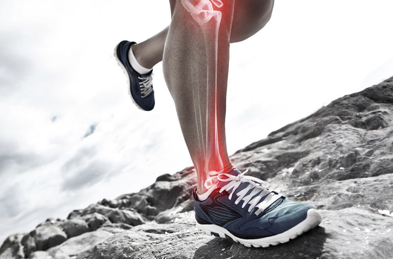 Shin splints may prevent you from running.