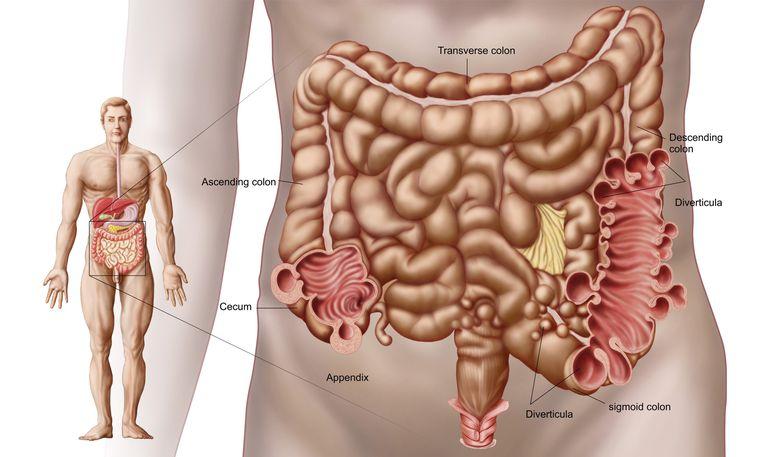 Diverticulitis in the descending colon region of the human intestine