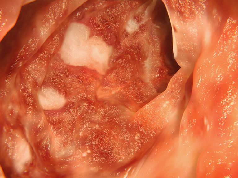 Rectal Bleeding And Inflammatory Bowel Disease Ibd