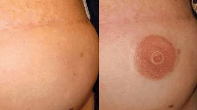 Riesgos De Los Tatuajes Temporales Con Henna Negra
