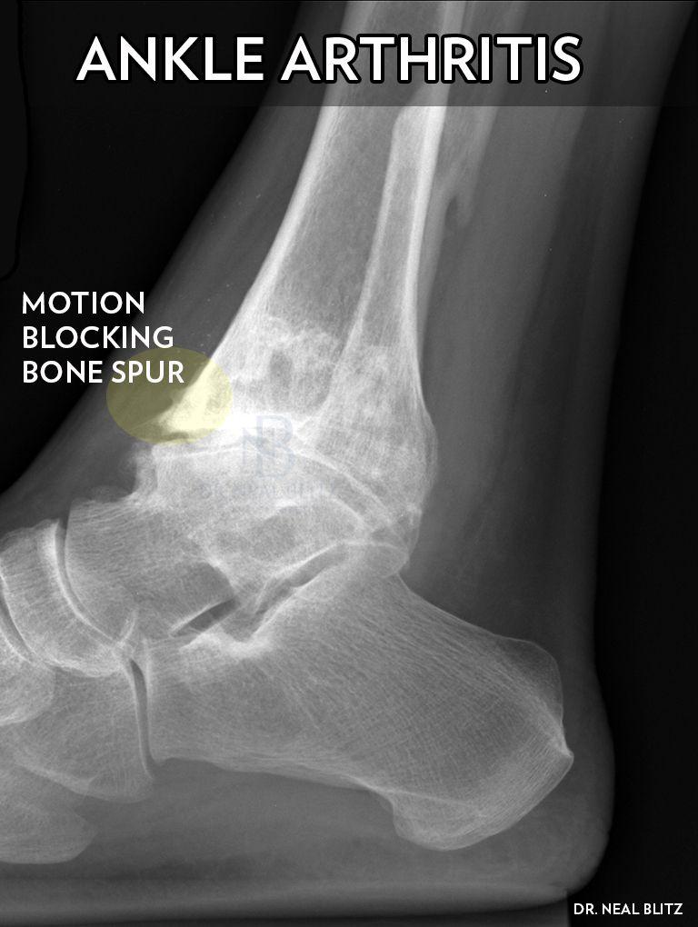 Ankle-Arthritis-Dr-Blitz.jpg