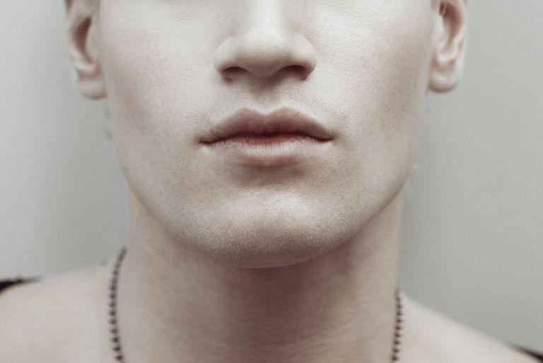 Portrait of albino man.