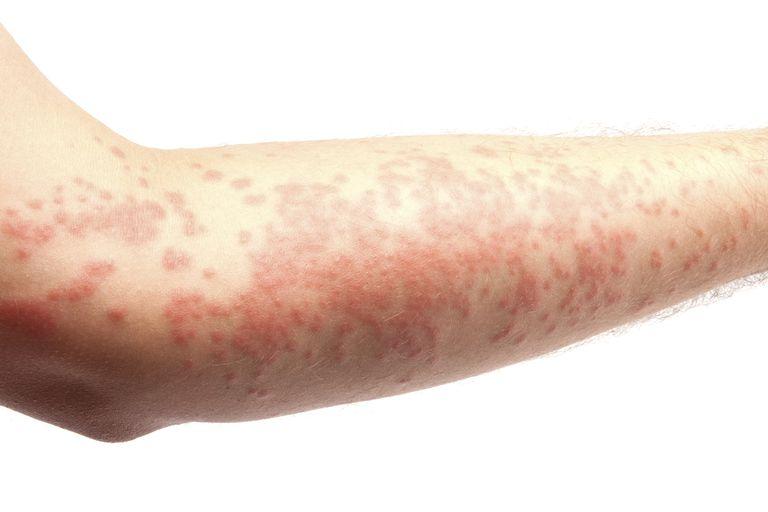 The hives skin rash.