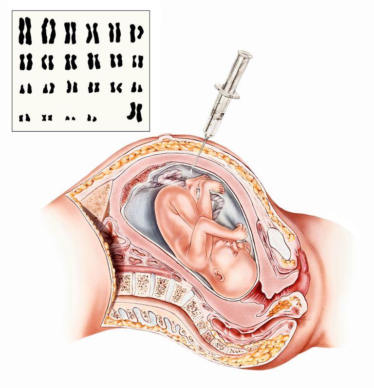 amniocentesis diagram