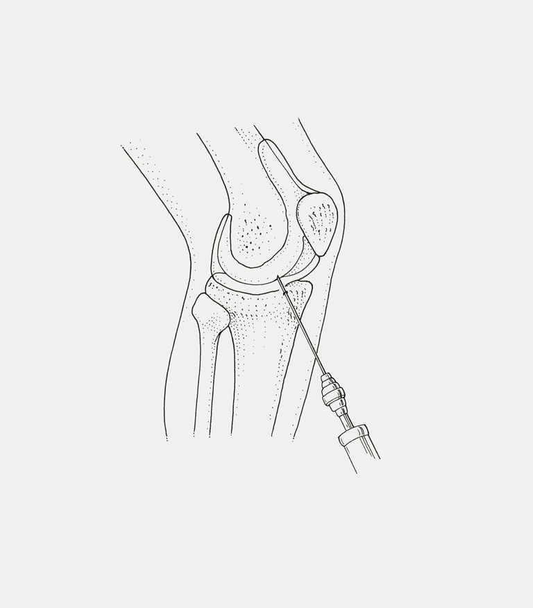 Black and white illustration of inserting biopsy needle in quadriceps muscle