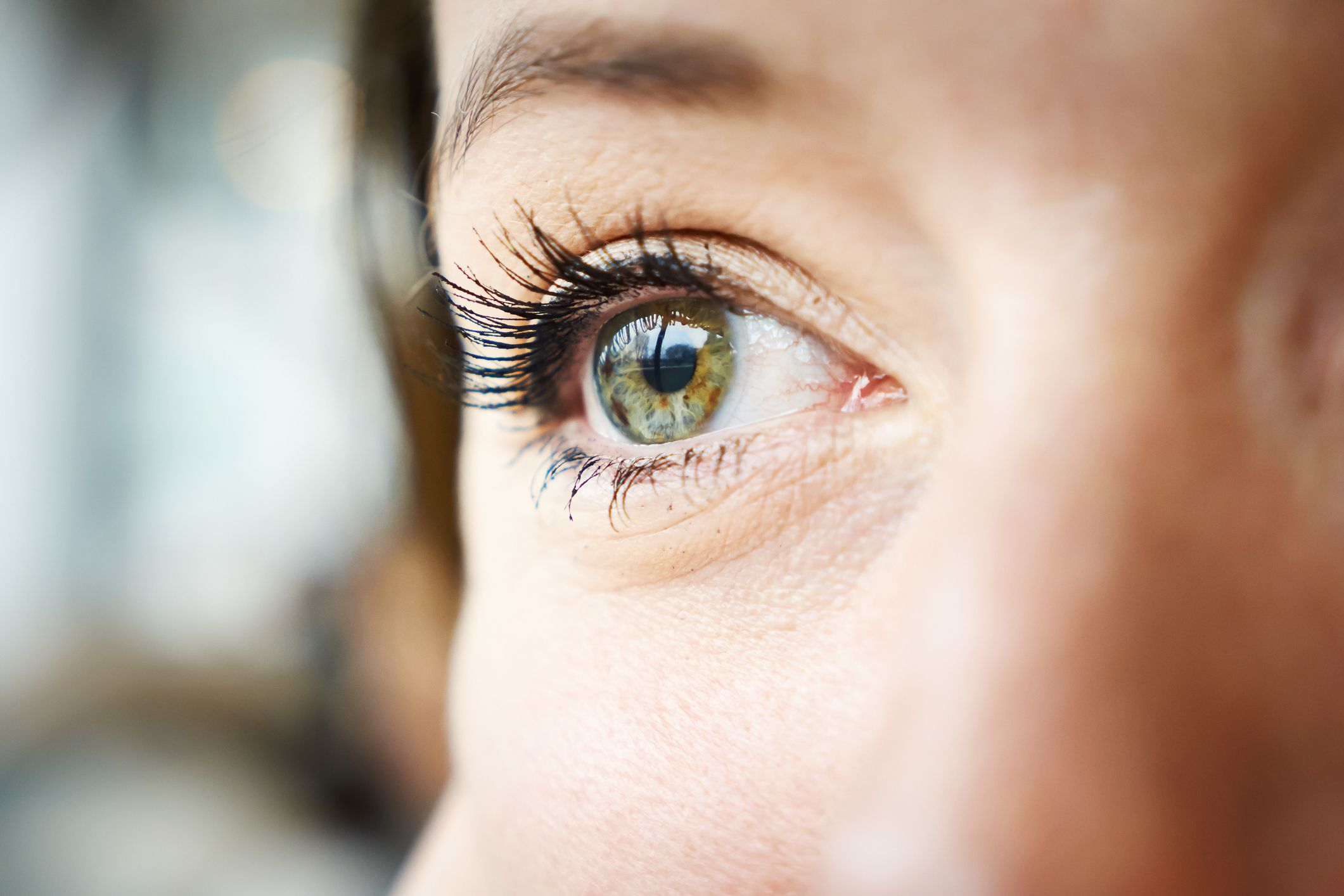 common causes of dry eye syndrome