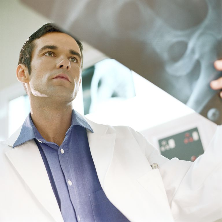 Doctor looking at hip x-ray.