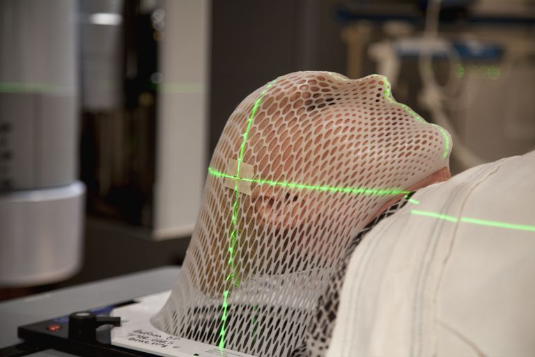 Woman in custom fitted mask getting radiation