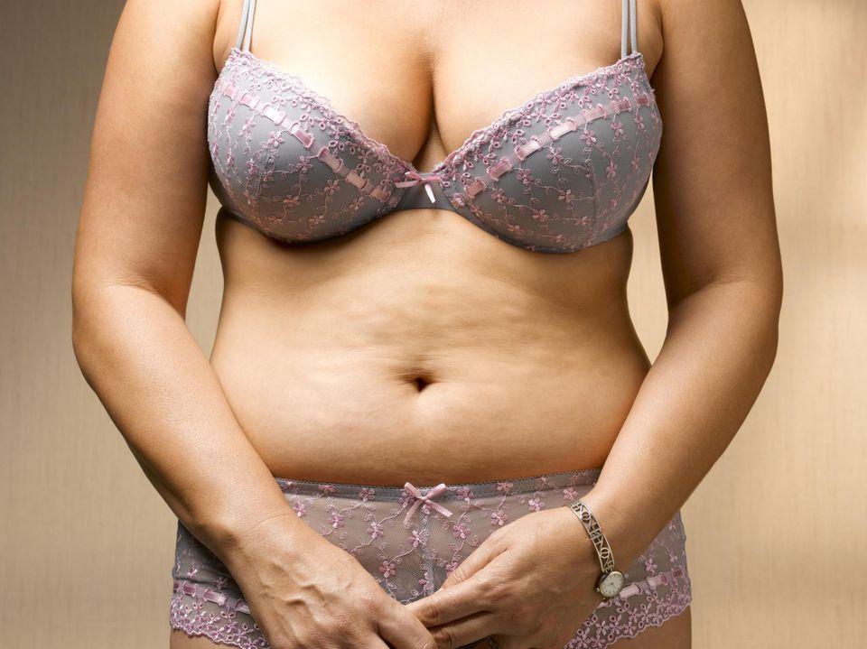 Stomach with cellulite Stomach with cellulite