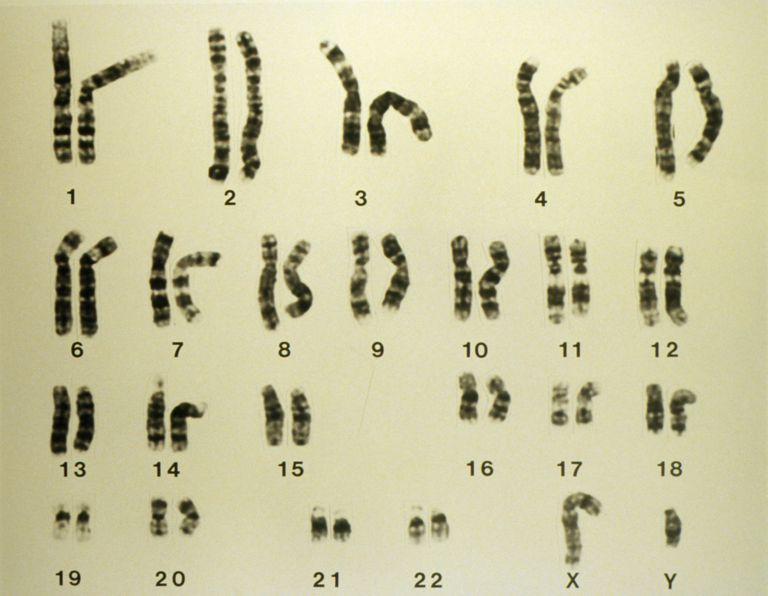 Light Micrograph of a Set of Normal Male Chromosomes