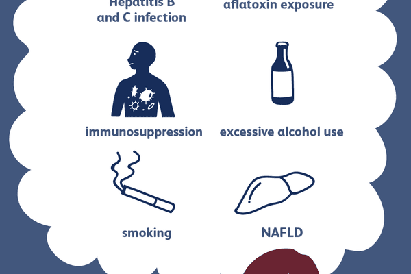 liver cancer risk factors