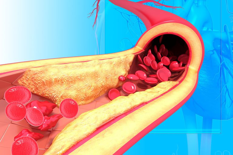 High cholesterol can lead to atherosclerosis.
