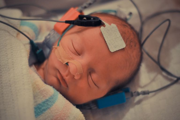 Premature baby having BAER hearing test