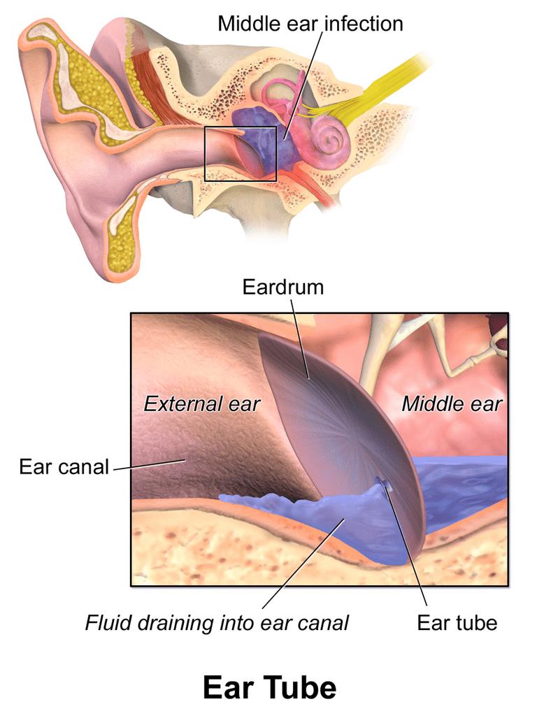 Ear tube to help drain fluid in the ear