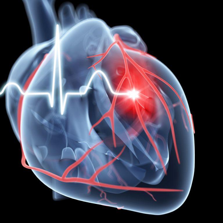 infarto, ataque cardiaco, ataque al corazon, infarto agudo miocardio, infarto