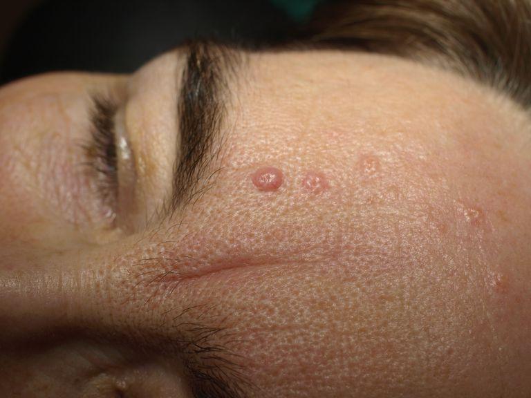 Sebaceous Hyperplasia