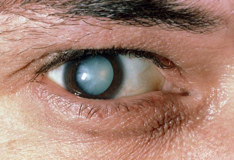Male patients eye with mature cataract