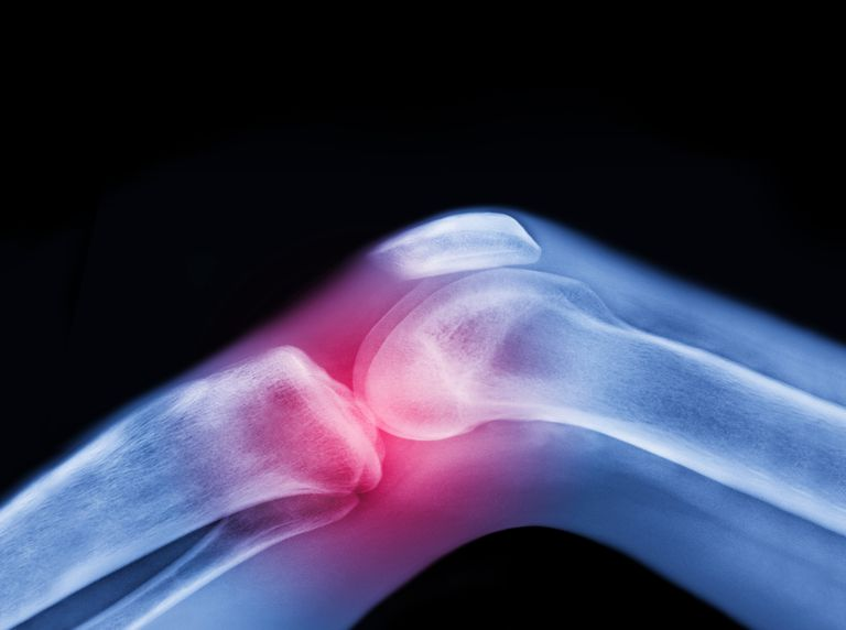 Xray of a knee in blue with red highlighting the injury