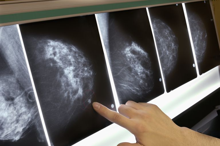 Woman pointing to area on mammogram x-ray.